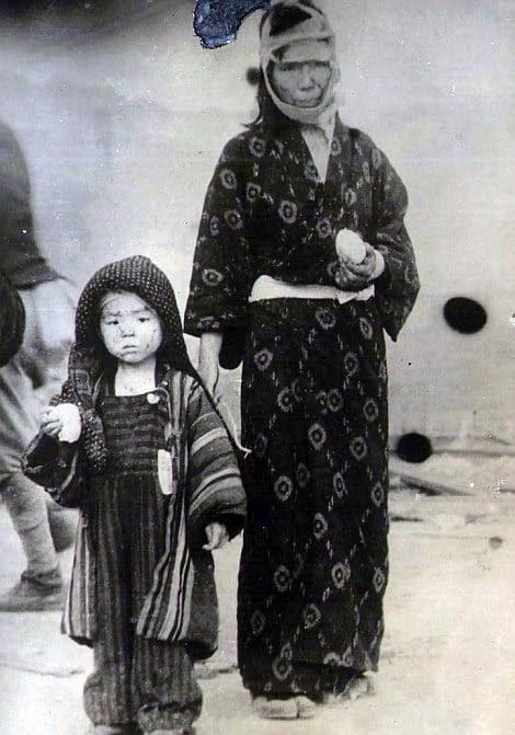 Hình ảnh Những hình ảnh chết chóc trong thảm họa bom nguyên tử Hiroshima số 10