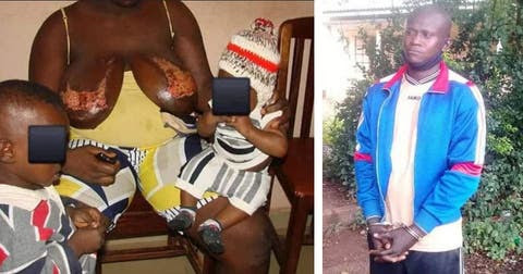 Wickedness: Man Pours Hot Water on Breast of His Breastfeeding Wife Has Been Remanded - Details