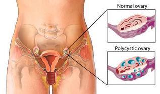 bener gak PCO bisa di lakukan therapy Hypnofertility PCO (Polycistic Ovarium)