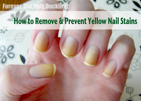 Yellow Nails Is There A Basecoat That Prevents Staining Bliss Kiss