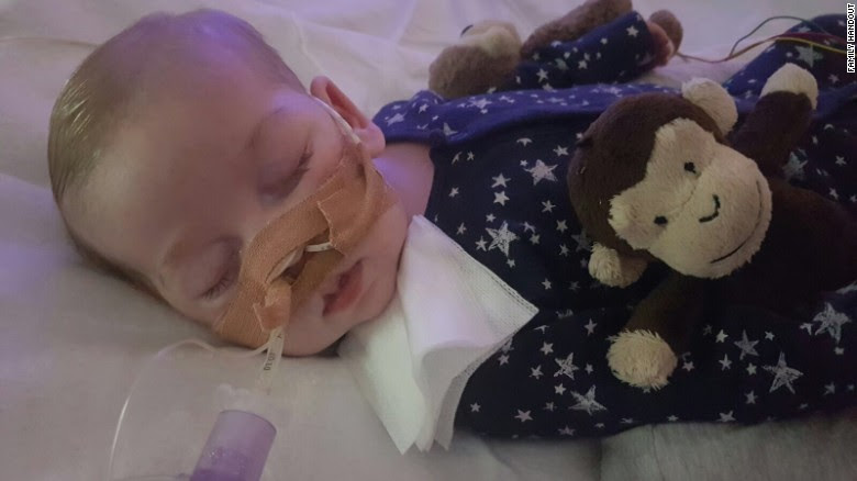 This photo of Charlie  became a symbol of the ethical debates around the right to life and the right of doctors -- or relatives - to say when life should end.