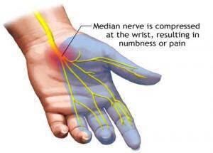 Πότε ο πόνος στο χέρι είναι Σύνδρομο Καρπιαίου Σωλήνα