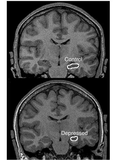 diminished Hippocampus in Depression