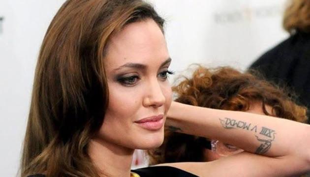 Es Posible Remover Un Tatuaje Revistas