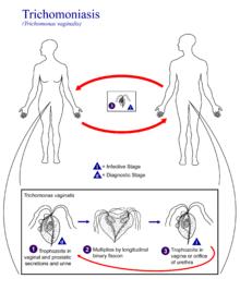 pencegahan terhadap penyakit Trikomoniasis