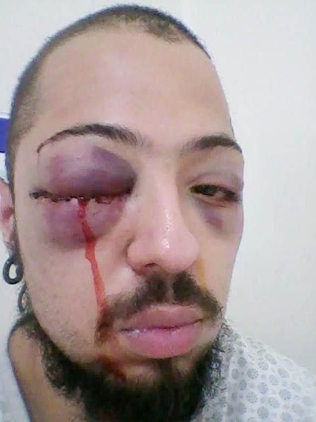Universitário Adauto Nogueira ferido após abordagem policial em república em Bauru (SP)