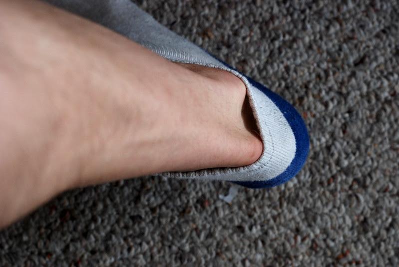 Culprit Leg
