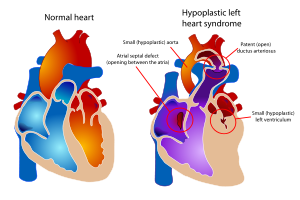 diagram showing a healthy heart and one suffer...