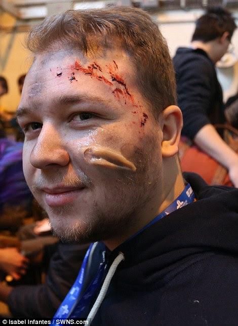 Ένας άλλος ηθοποιός έχει τραύματα στο πρόσωπο