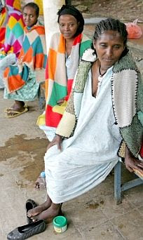 Obstetric fistula patients