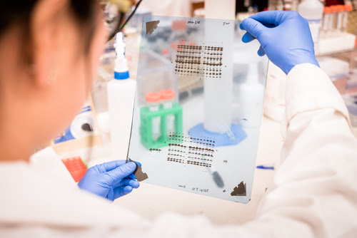 Analyzing gel results. Image: SINITAR/Shutterstock.com