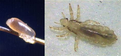 Removing Head Lice Safely Video (video)   Nebraska Extension in Lancaster County   University of