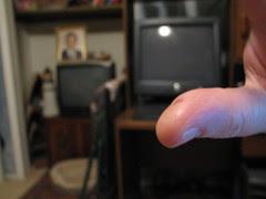 My wound