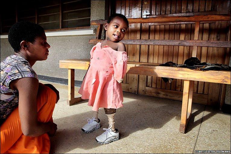 Asha crouching and Amina standing © CCBRT/DIETER TELEMANS