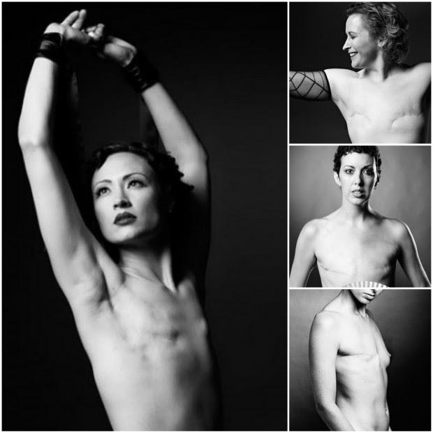 Imágenes del proyecto Scar (cicatriz).