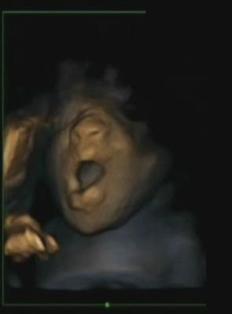 Fetus yawning