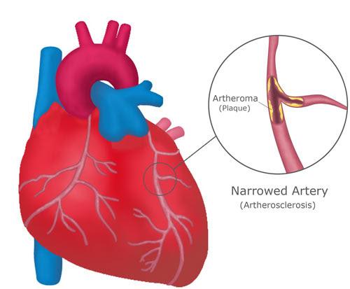 Coronary Heart 2