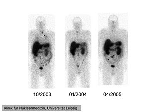 111In-pentetreotide scintigraphy of the 41 yea...
