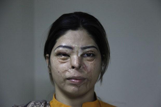 Entre as mulheres que passaram pela cirurgia está Kanwal Ashar, de 24 anos, que teve ácido jogado em seu rosto por um homem após ela recusar sua proposta de casamento. Outra mulher atendida pelo médico foi Kanwal Qayum, 26 anos, que foi vítima do ataque d (Foto: Shakil Adil/AP Images for Crown Clinic)