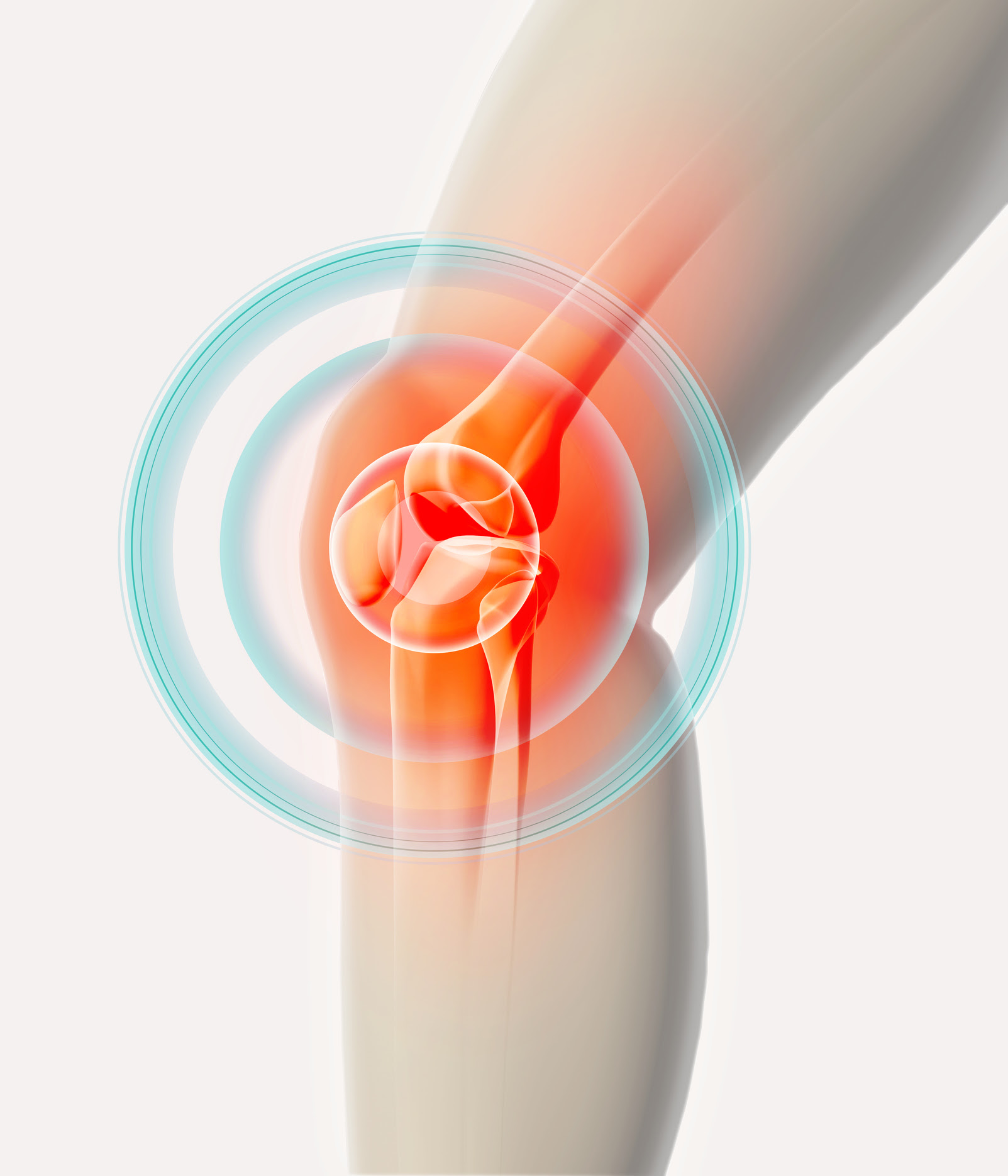 The Mysterious Rise In Knee Osteoarthritis Harvard Health Blog Harvard Health Publishing