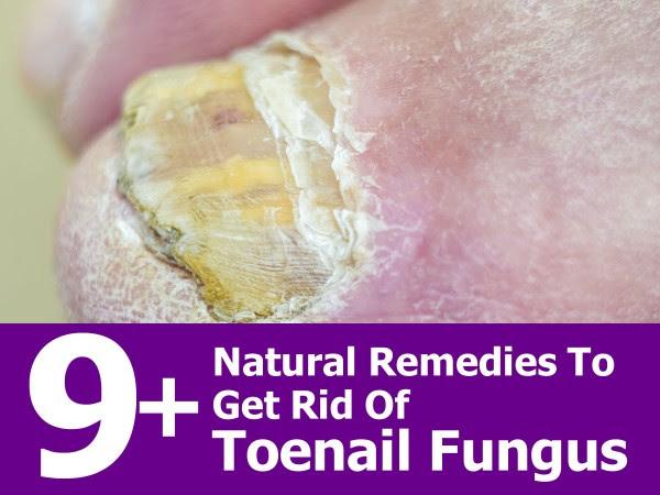 get-rid-of-toenail-fungus
