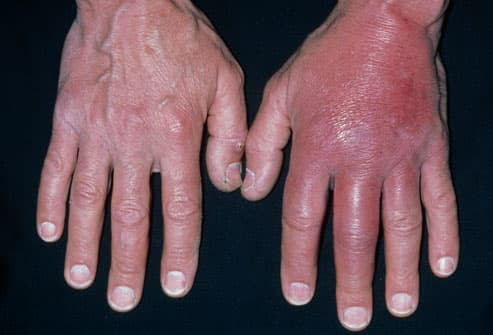 Cellulitis On Hands