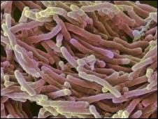 Bacteria tuberculosa