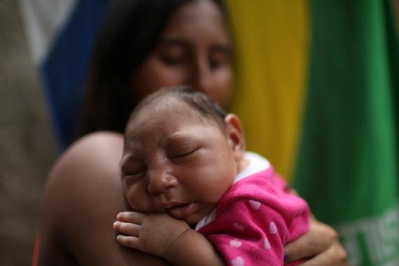 Resultado de imagen para consecuencias virus zika