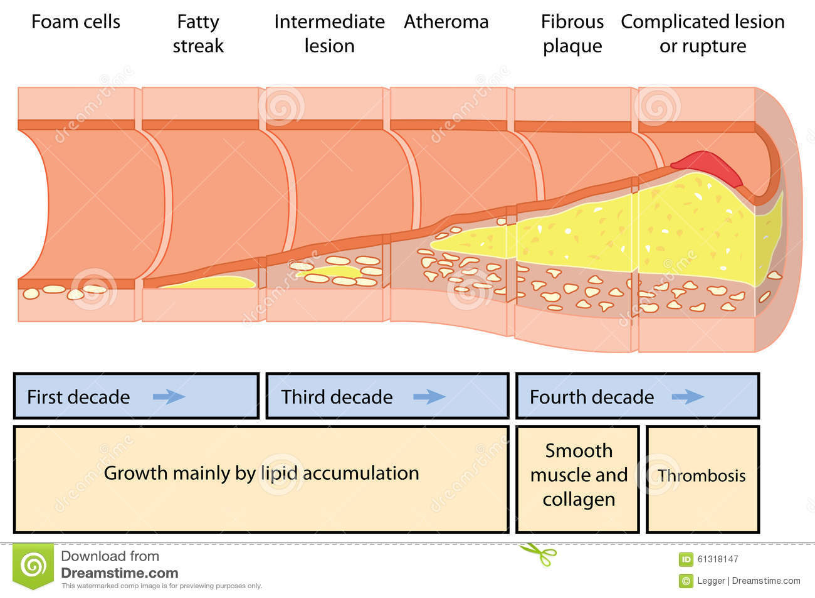 atheroma formation development atheromatous plaque artery over four decades created adobe illustrator eps 61318147