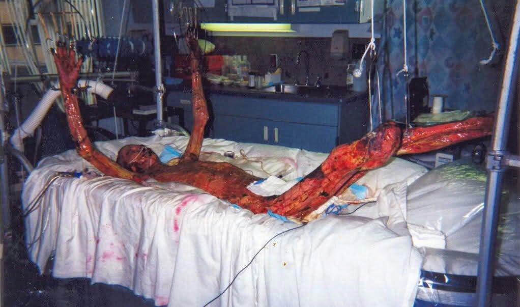 o corpo de ouchi, no fim da vida (Foto: imgur)