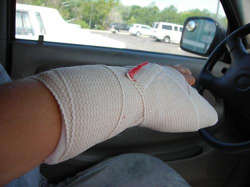 New splint