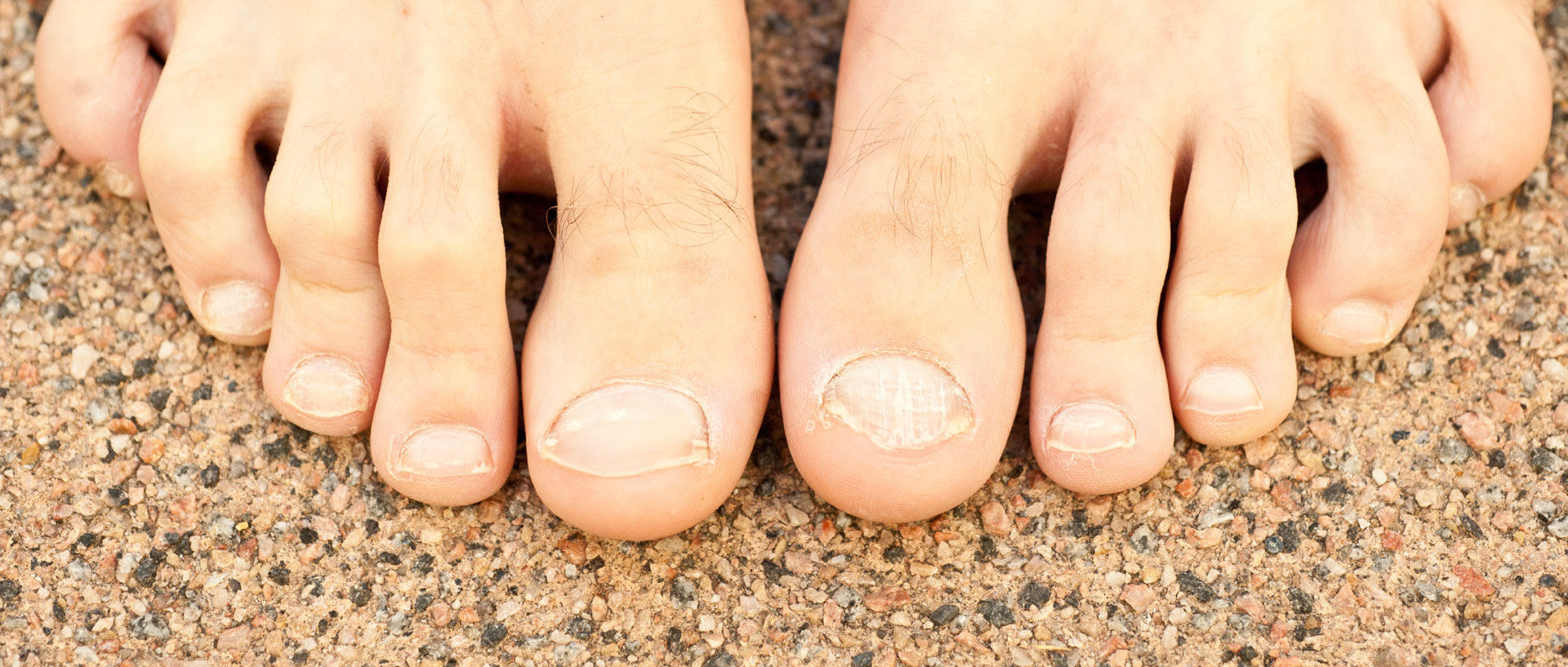 What Can I Do To Relieve Hammertoe Pain Consumer Reports