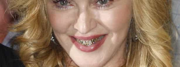 Madonna forra dentes... a ouro e diamantes