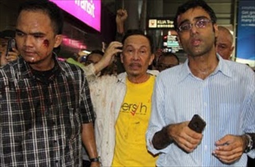 Opposition Anwar Ibrahim & his bodyguard hurt by tear gas