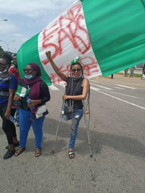 EndSARS Protester, Jane Practises With Her Prosthetic Leg Bought From Donations