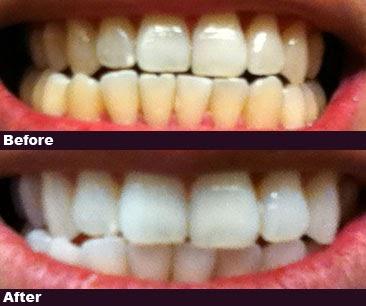 Kalem Teeth 3d Teeth Whitening Reviews