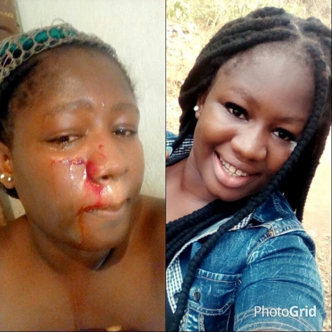 See What Weed Man Did To a Lady On Valentine Day Because Of This ****Brutilized Photo****