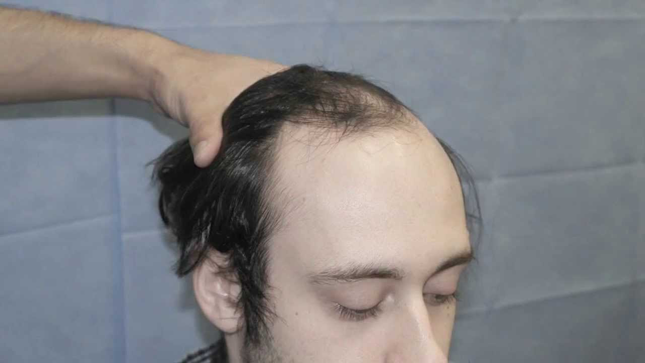 Dutasteride 0 5mg Hair Loss Medications