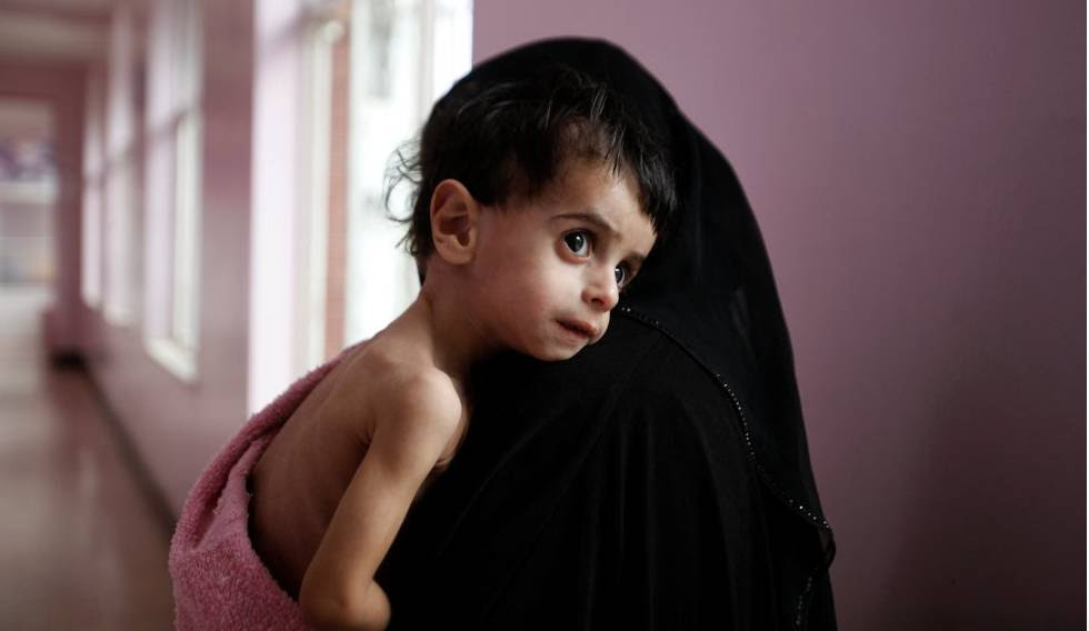 Una madre con su hijo desnutrido en un hospital de Saná (Yemen).