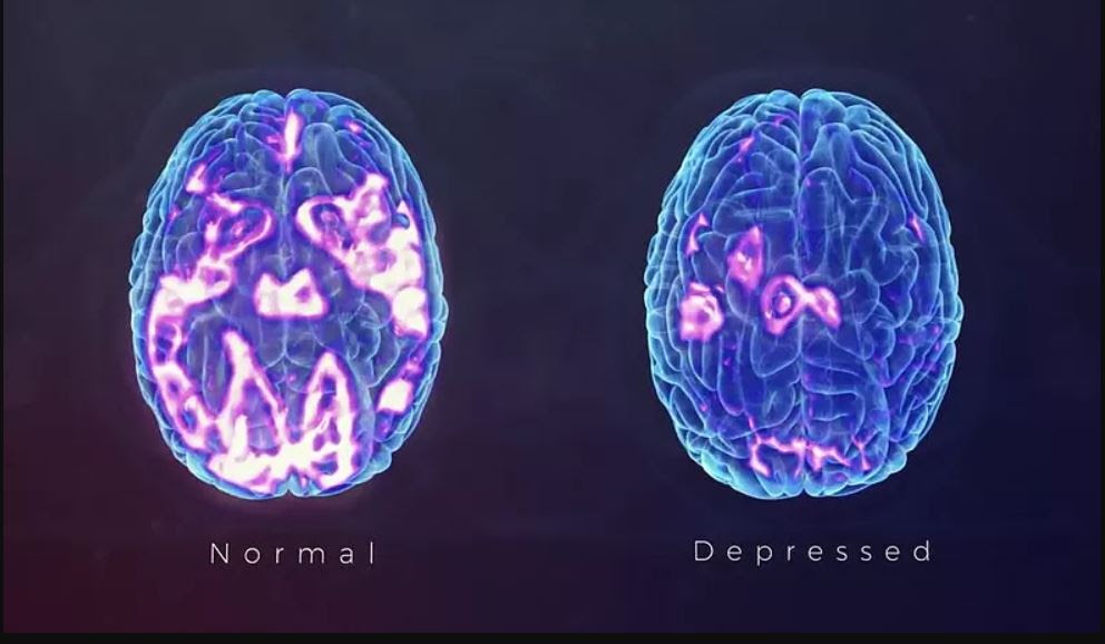 Normal-vs-depressed-brain - TMS Center at Southeastern ...