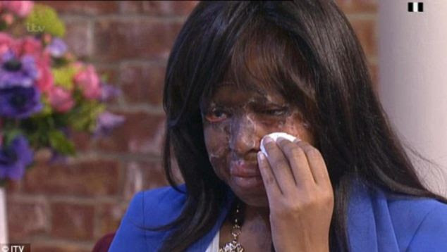 Horrific injuries: Naomi Oni suffered burns to her face, head, arm and leg in an apparent attack in December