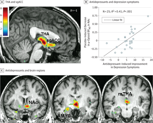 Association Between Placebo-Activated Neural Systems and ...