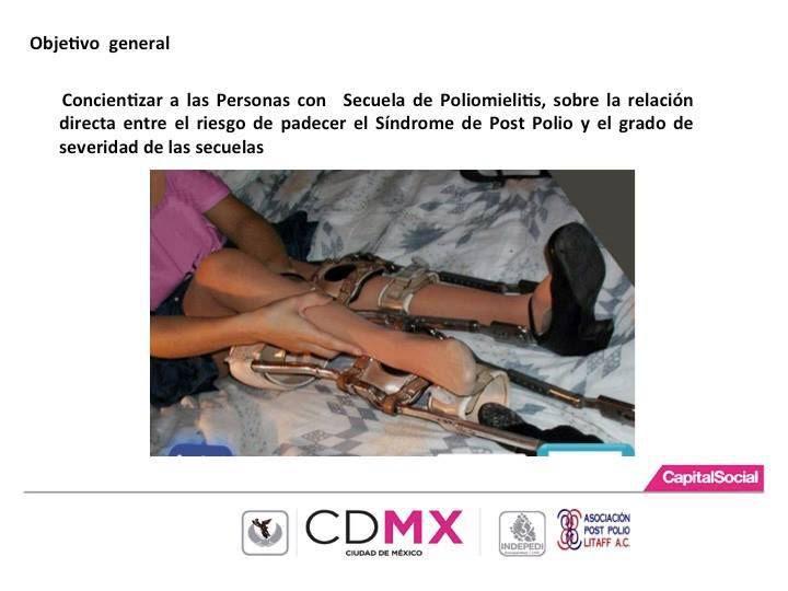 Conferencia Post Polio Síndrome de Alta frecuencia de Discapacidad Motriz.