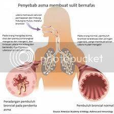 Penyakit Asma Bronkiale
