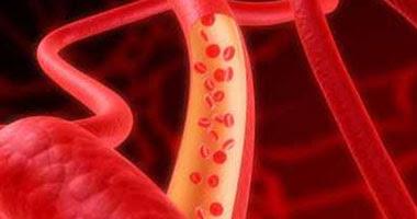تناول الثوم يقى من الإصابة بأمراض القلب والأوعية الدموية