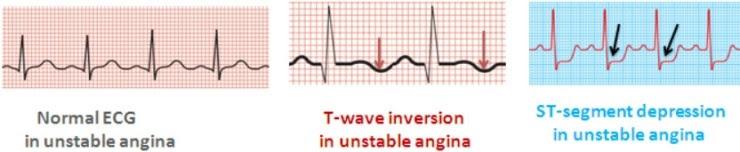 unstable angina : 네이버 블로그