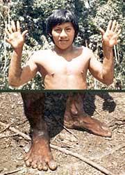 Some Waorani had six fingers and six toes