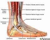 Photos of Acute Foot Pain