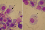 Thumbnail of Orientia tsutsugamushi (arrows) in culture of bronchoalveolar lavage fluid from a patient with acute respiratory distress syndrome (Diff-Quick stain, VWR International, France). Original magnification ×100.