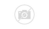 Acute Middle Back Pain Pictures
